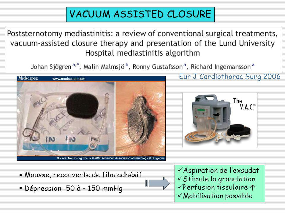 VACUUM ASSISTED CLOSURE Mousse, recouverte de film adhésif Dépression -50 à – 150 mmHg Aspiration de lexsudat Stimule la granulation Perfusion tissula
