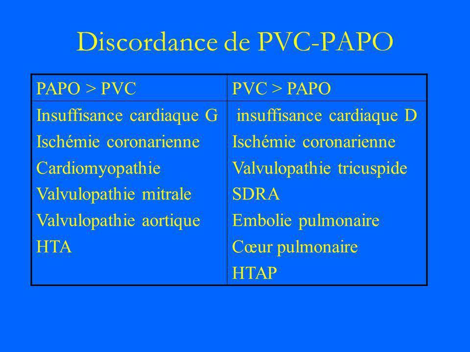 Discordance de PVC-PAPO PAPO > PVCPVC > PAPO Insuffisance cardiaque G Ischémie coronarienne Cardiomyopathie Valvulopathie mitrale Valvulopathie aortiq