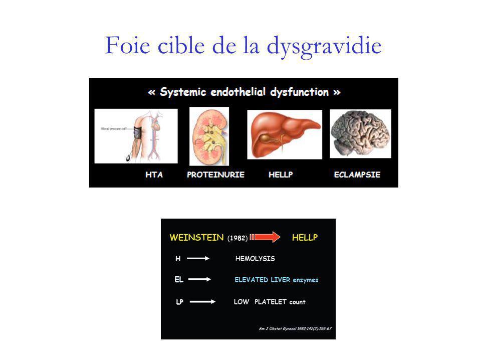 Dysgravidie:anomalie de la placentation Grossesse normale Invasion des artères utérines par les syncitiotrophoblastes Induit vasodilatation artérielle Augmentation du flux utéro-placentaire Pré-éclampsie - dysgravidie Défaut dinvasion: peu ou pas dinvasion Modification physiologiques incomplètes Conservation des caractéristiques résistives Diminution du flux utéro-placentaire Ischémie placentaire