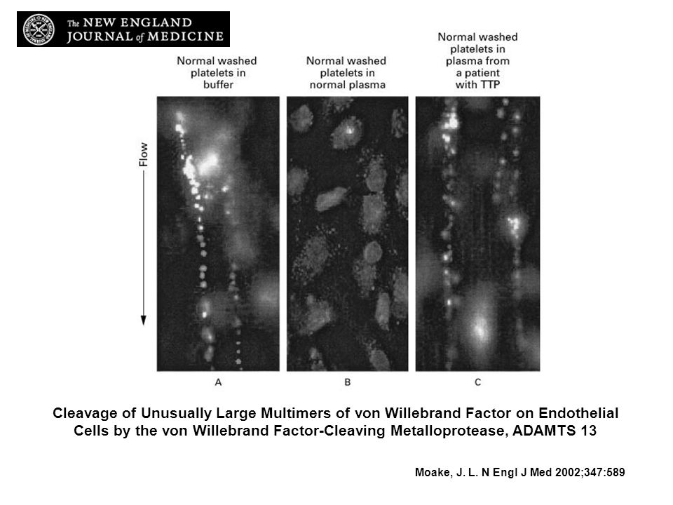 Cleavage of Unusually Large Multimers of von Willebrand Factor on Endothelial Cells by the von Willebrand Factor-Cleaving Metalloprotease, ADAMTS 13 M