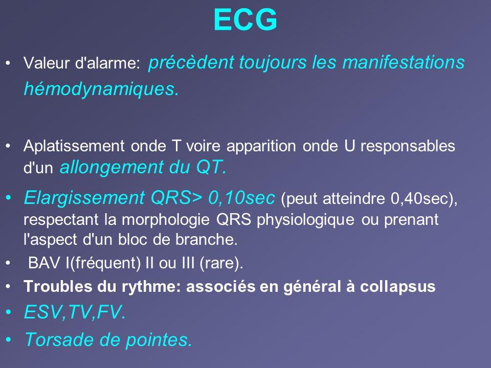 ECG Valeur d'alarme: précèdent toujours les manifestations hémodynamiques. Aplatissement onde T voire apparition onde U responsables d'un allongement