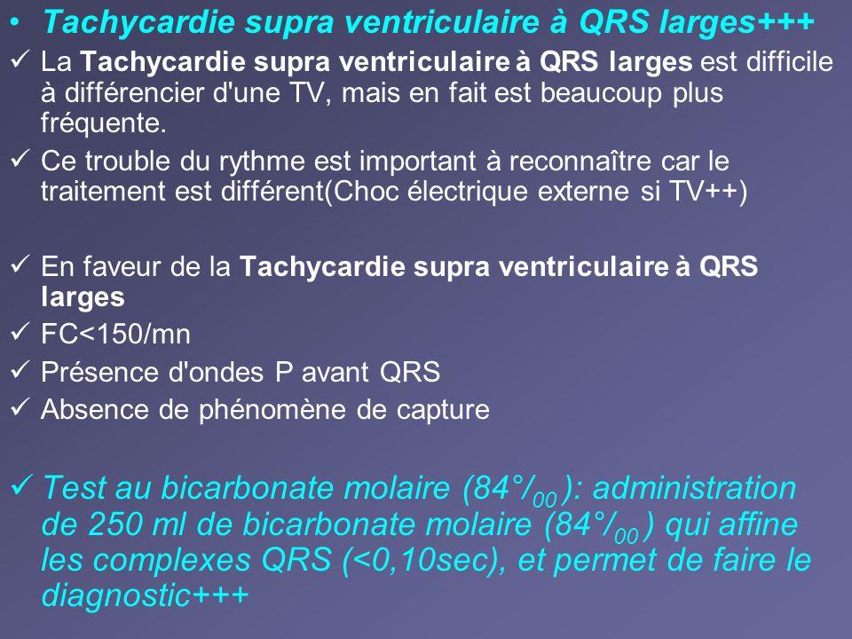 Tachycardie supra ventriculaire à QRS larges+++ La Tachycardie supra ventriculaire à QRS larges est difficile à différencier d'une TV, mais en fait es