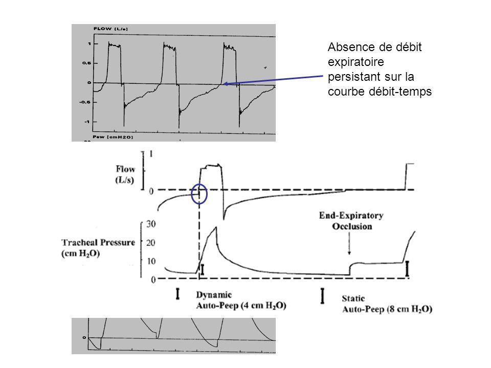 Absence de débit expiratoire persistant sur la courbe débit-temps