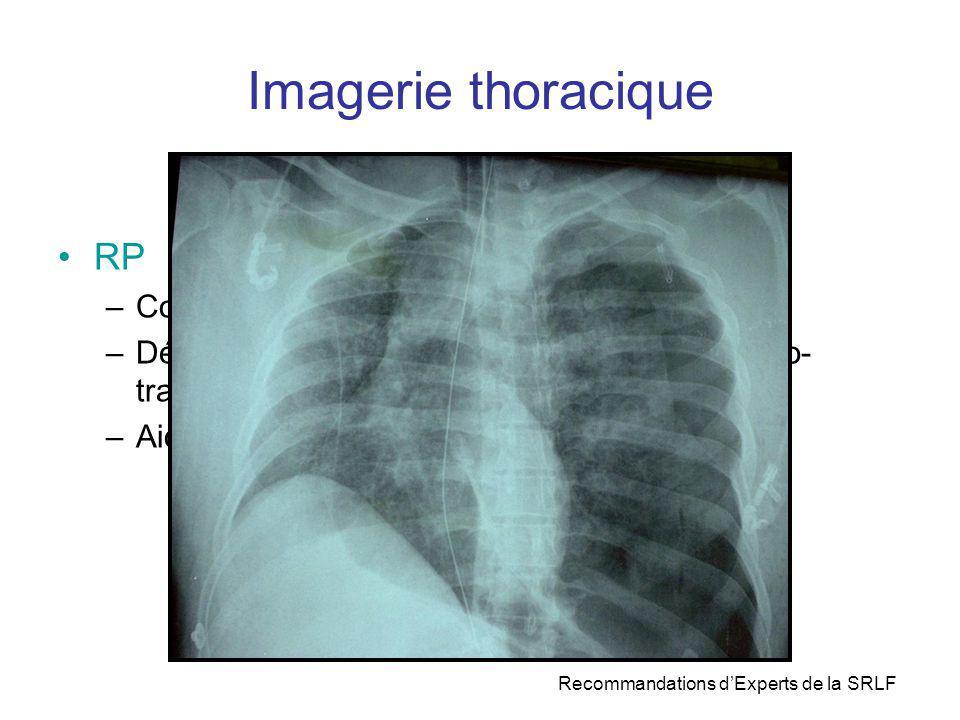 Imagerie thoracique RP –Contrôle des gestes invasifs : SI + cathéters –Dépistage et suivi des complications baro- volo- traumatiques liés à la VM –Aid