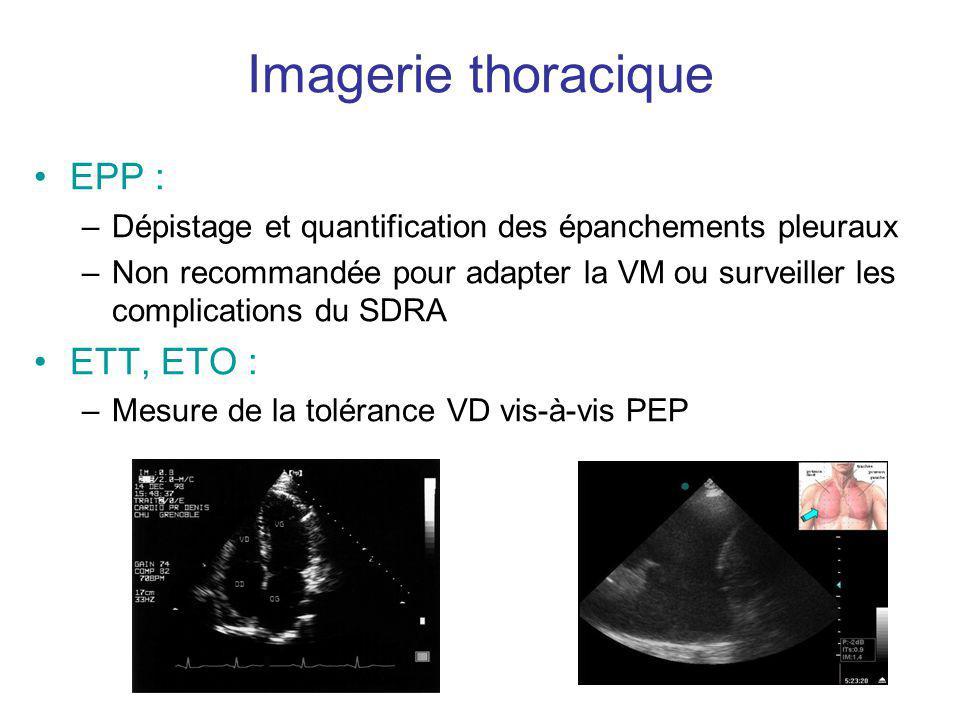 Imagerie thoracique EPP : –Dépistage et quantification des épanchements pleuraux –Non recommandée pour adapter la VM ou surveiller les complications d