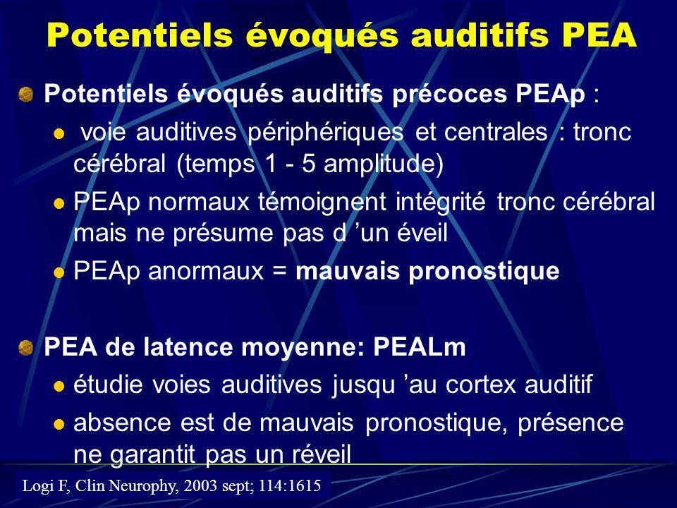 Potentiels évoqués auditifs PEA Potentiels évoqués auditifs précoces PEAp : voie auditives périphériques et centrales : tronc cérébral (temps 1 - 5 am