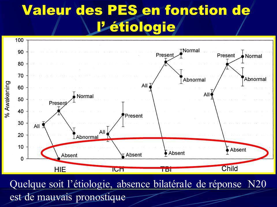 Quelque soit létiologie, absence bilatérale de réponse N20 est de mauvais pronostique Valeur des PES en fonction de l étiologie
