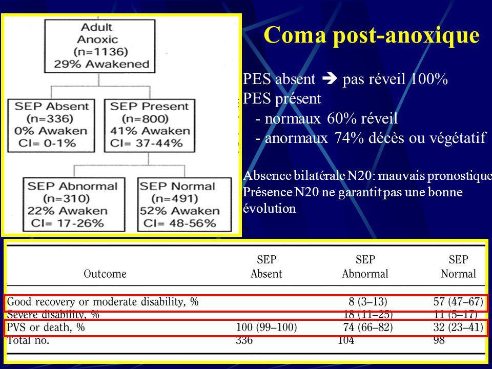 Coma post-anoxique PES absent pas réveil 100% PES présent - normaux 60% réveil - anormaux 74% décès ou végétatif Absence bilatérale N20: mauvais prono