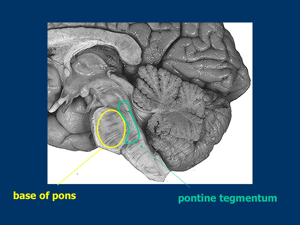 pontine tegmentum base of pons