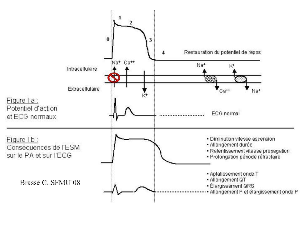 Conséquences cliniques Effet dromotrope négatif Effet inotrope négatif Effet chronotrope négatif Effet proarythmogene Vasodilatation artérielle Collapsus cardiogénique et vasoplégique