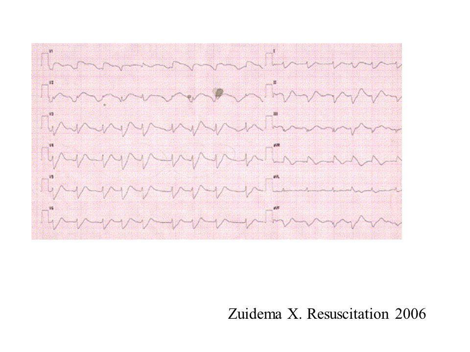 Zuidema X. Resuscitation 2006