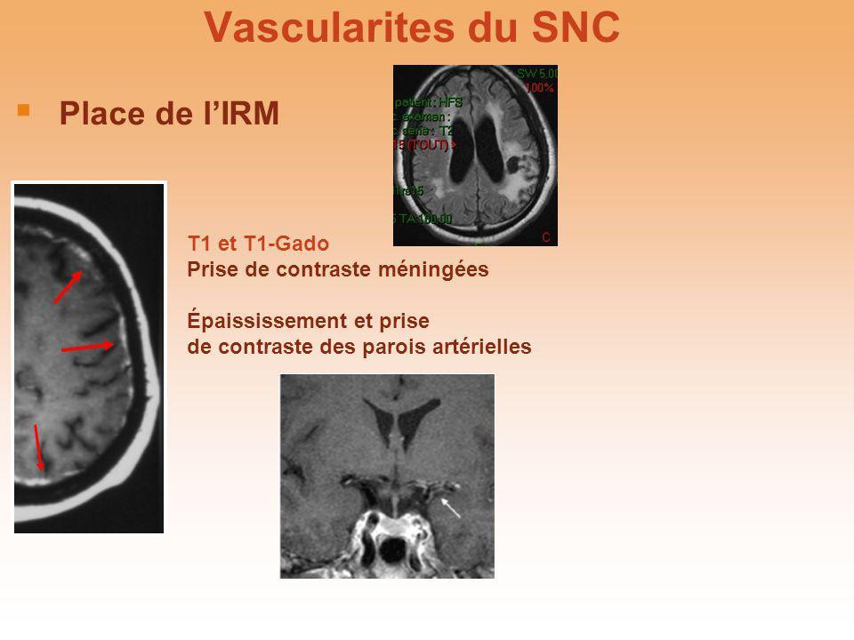 Vascularites du SNC Place de lIRM T1 et T1-Gado Prise de contraste méningées Épaississement et prise de contraste des parois artérielles