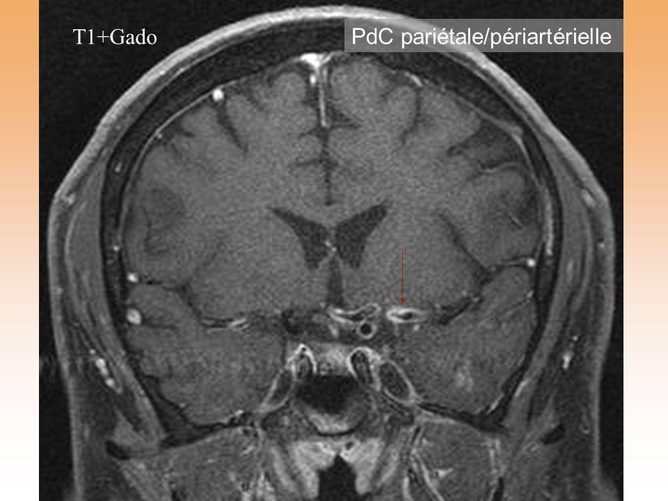 T1+Gado PdC pariétale/périartérielle