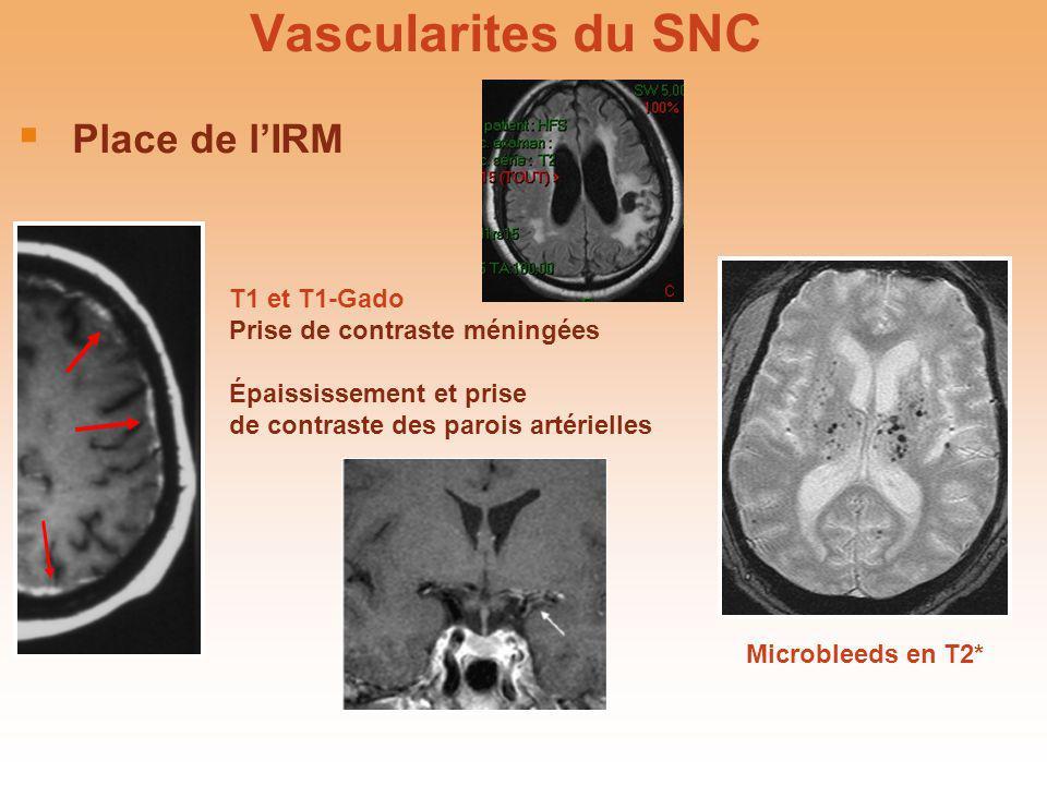 Vascularites du SNC Place de lIRM T1 et T1-Gado Prise de contraste méningées Épaississement et prise de contraste des parois artérielles Microbleeds e