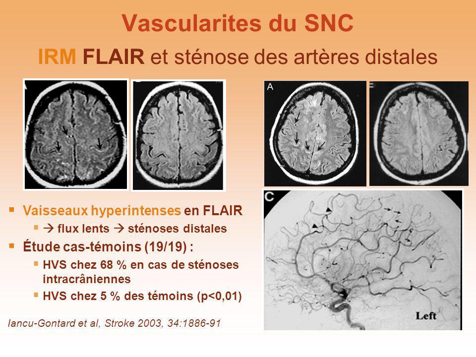 Vascularites du SNC IRM FLAIR et sténose des artères distales Iancu-Gontard et al, Stroke 2003, 34:1886-91 Vaisseaux hyperintenses en FLAIR flux lents