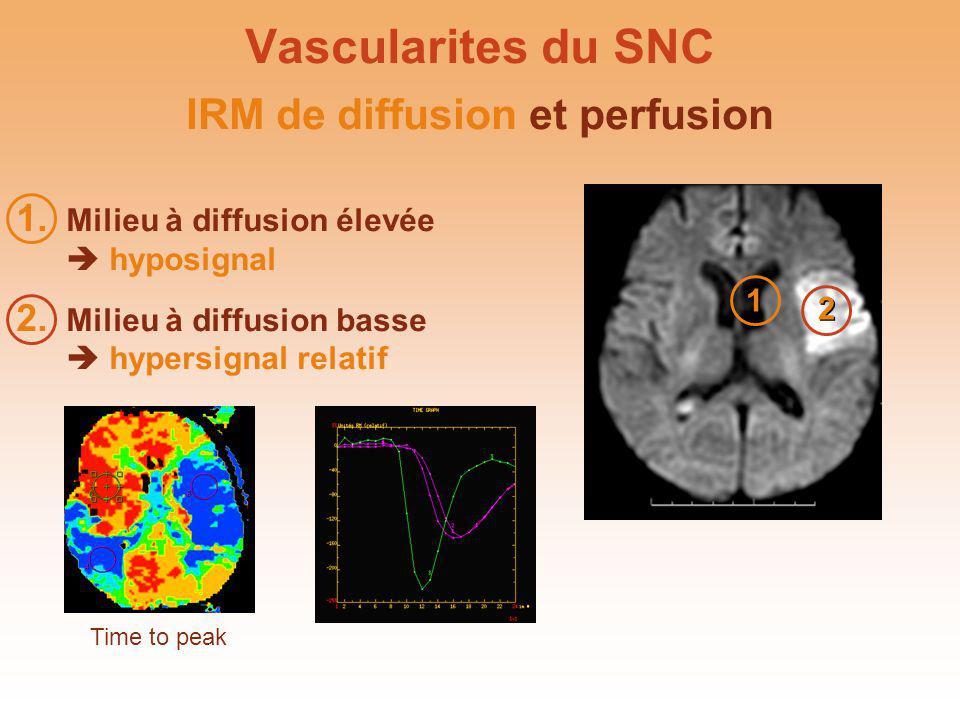 Vascularites du SNC 2 2 1 1 Time to peak IRM de diffusion et perfusion 1. Milieu à diffusion élevée hyposignal 2. Milieu à diffusion basse hypersignal
