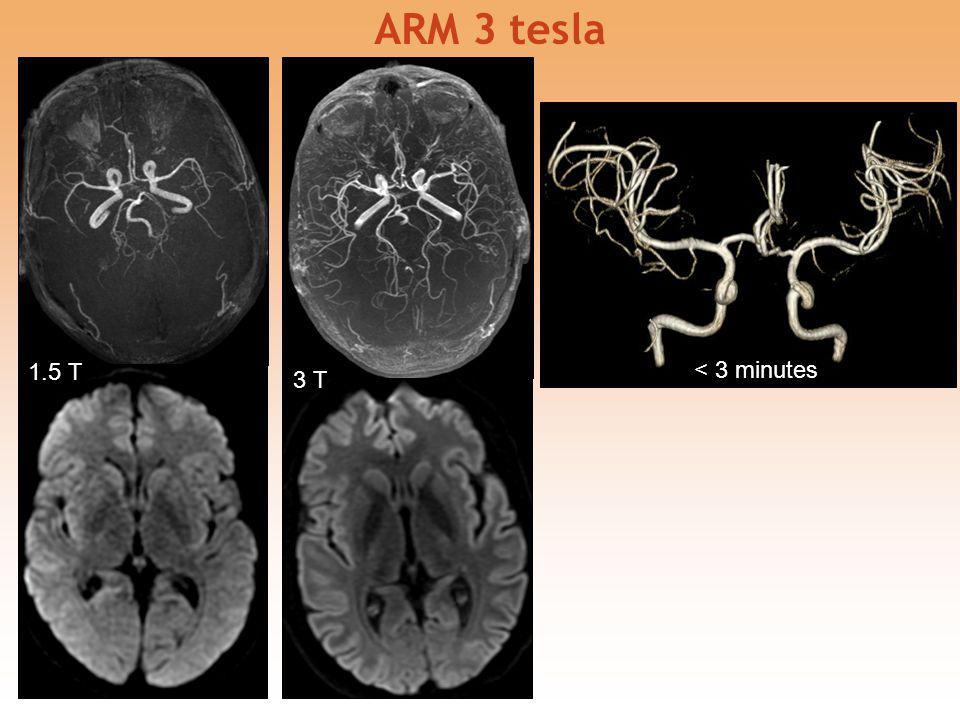 ARM 3 tesla 1.5 T 3 T < 3 minutes