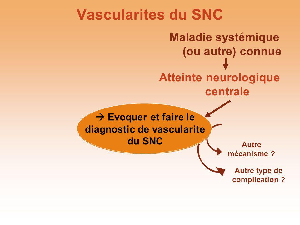 Vascularite cérébrale primitive Salvarani et al, Ann Neurol 2007, 62 : 442-51 Céphalées 63 %, cognitifs 50 %, visuels 42 %, AVC ou déficit 40 %, aphasie 28 %, épilepsie 16 %, hémorragie 8 % 8 FAN, 2 FR, 1 ACL, 0 ANCA PL anormale 88 % GB 5 (0-535) Prot 0,72 (0,15-1,03) Céphalées 63 %, cognitifs 50 %, visuels 42 %, AVC ou déficit 40 %, aphasie 28 %, épilepsie 16 %, hémorragie 8 % 8 FAN, 2 FR, 1 ACL, 0 ANCA PL anormale 88 % GB 5 (0-535) Prot 0,72 (0,15-1,03)