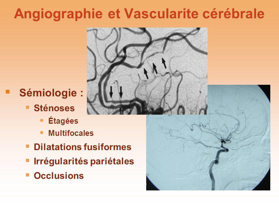 Angiographie et Vascularite cérébrale Sémiologie : Sténoses Étagées Multifocales Dilatations fusiformes Irrégularités pariétales Occlusions