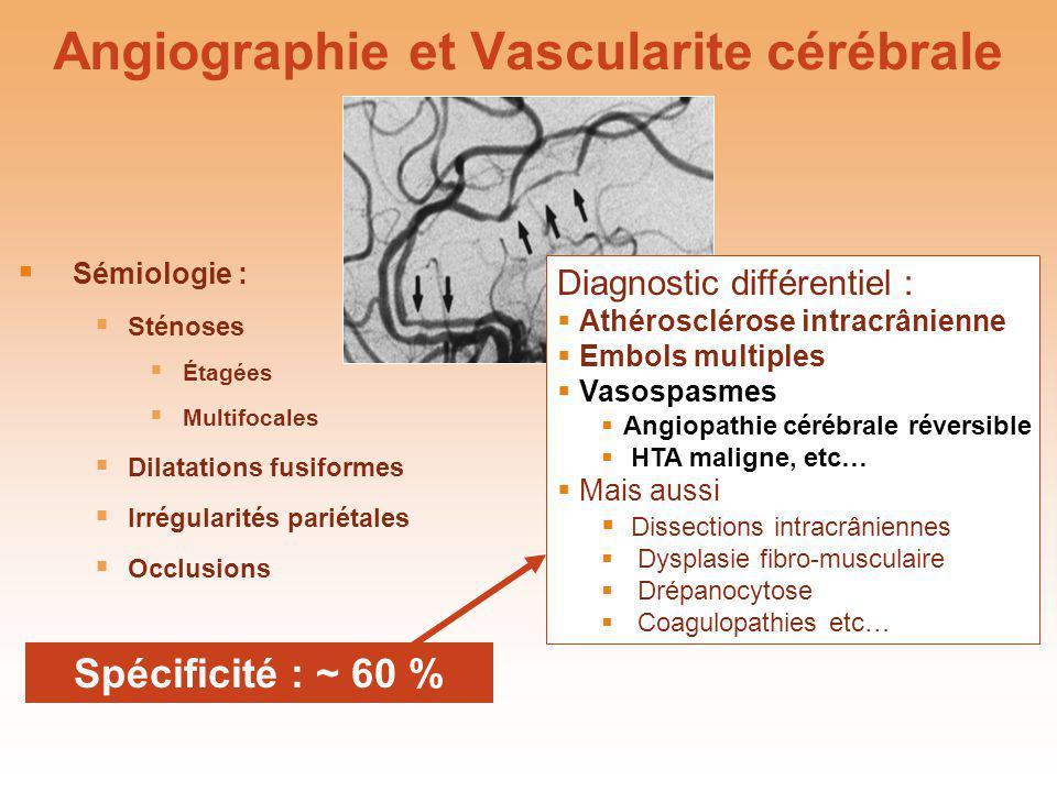 Angiographie et Vascularite cérébrale Diagnostic différentiel : Athérosclérose intracrânienne Embols multiples Vasospasmes Angiopathie cérébrale réver