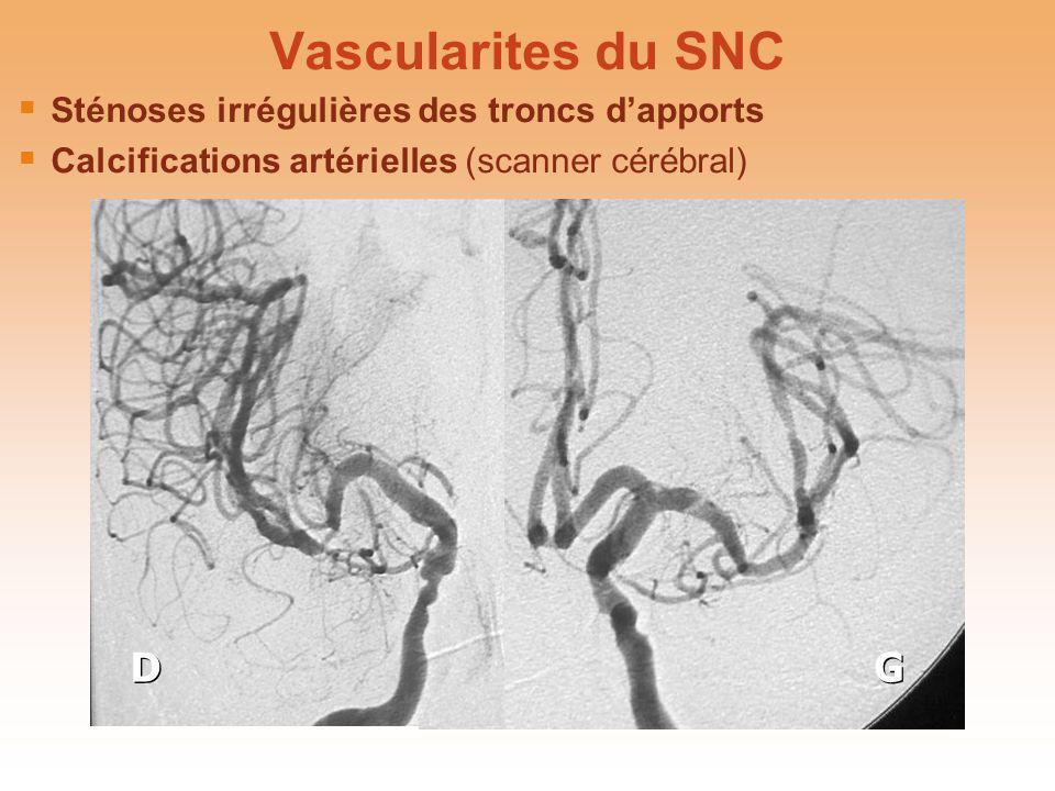 Vascularites du SNC Sténoses irrégulières des troncs dapports Calcifications artérielles (scanner cérébral) Sténoses irrégulières des troncs dapports
