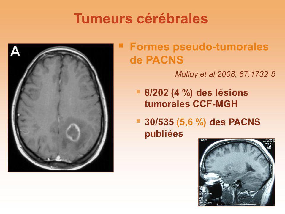 Formes pseudo-tumorales de PACNS Molloy et al 2008; 67:1732-5 8/202 (4 %) des lésions tumorales CCF-MGH 30/535 (5,6 %) des PACNS publiées Tumeurs céré