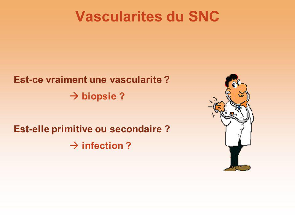 Vascularites du SNC Est-ce vraiment une vascularite ? biopsie ? Est-elle primitive ou secondaire ? infection ?