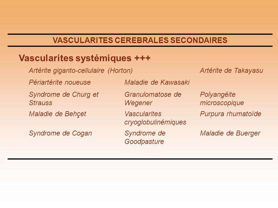 VASCULARITES CEREBRALES SECONDAIRES Vascularites systémiques +++ Artérite giganto-cellulaire (Horton)Artérite de Takayasu Périartérite noueuseMaladie