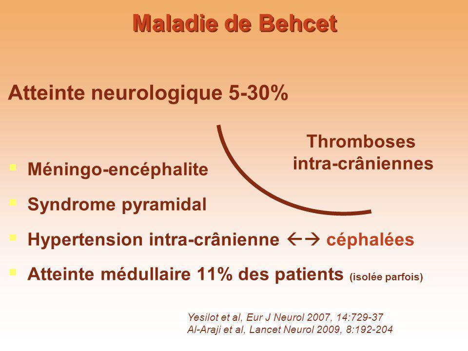 Maladie de Behcet Atteinte neurologique 5-30% Méningo-encéphalite Syndrome pyramidal Hypertension intra-crânienne céphalées Atteinte médullaire 11% de