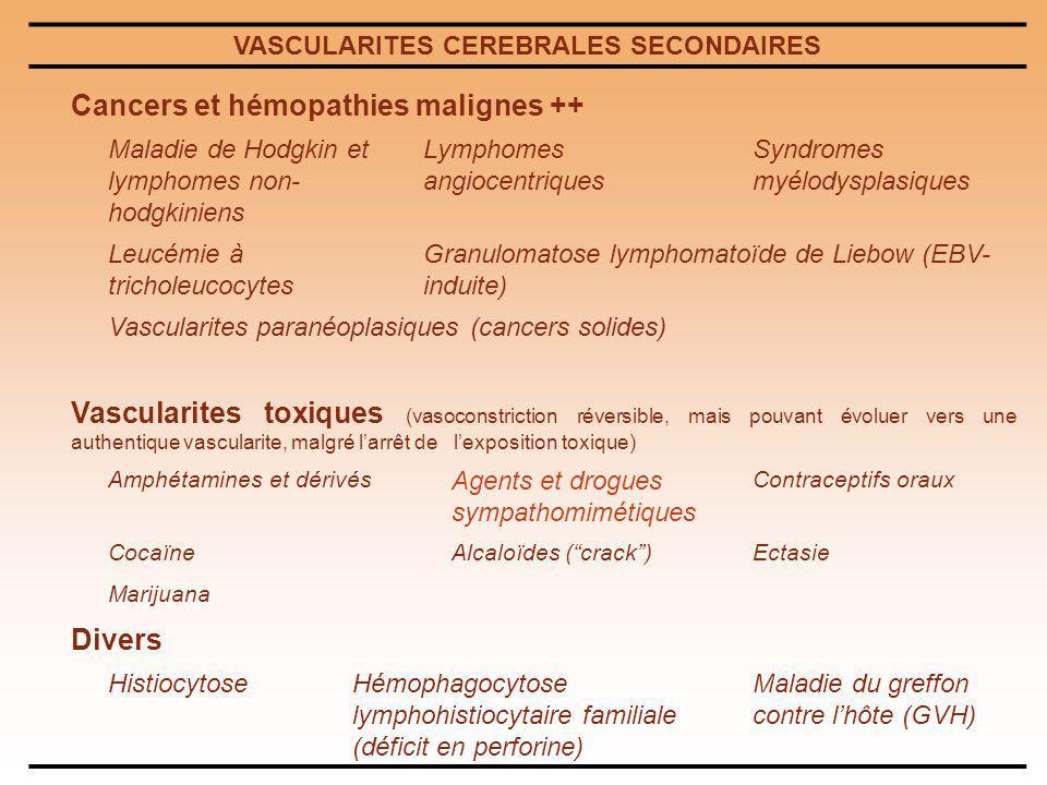 VASCULARITES CEREBRALES SECONDAIRES Cancers et hémopathies malignes ++ Maladie de Hodgkin et lymphomes non- hodgkiniens Lymphomes angiocentriques Synd