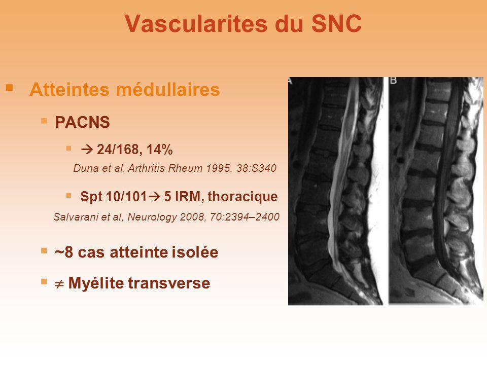 Vascularites du SNC Atteintes médullaires PACNS 24/168, 14% Spt 10/101 5 IRM, thoracique ~8 cas atteinte isolée Myélite transverse Atteintes médullair