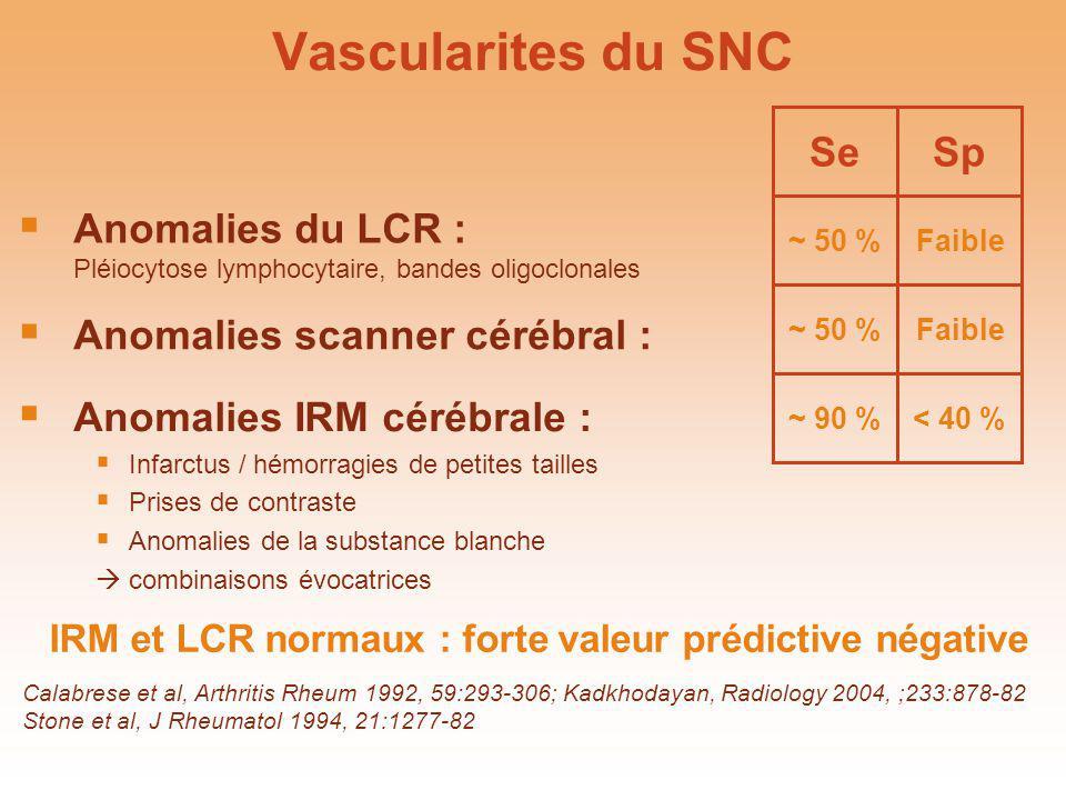Vascularites du SNC Se ~ 50 % Sp Faible Anomalies du LCR : Pléiocytose lymphocytaire, bandes oligoclonales ~ 50 %Faible Anomalies scanner cérébral : ~