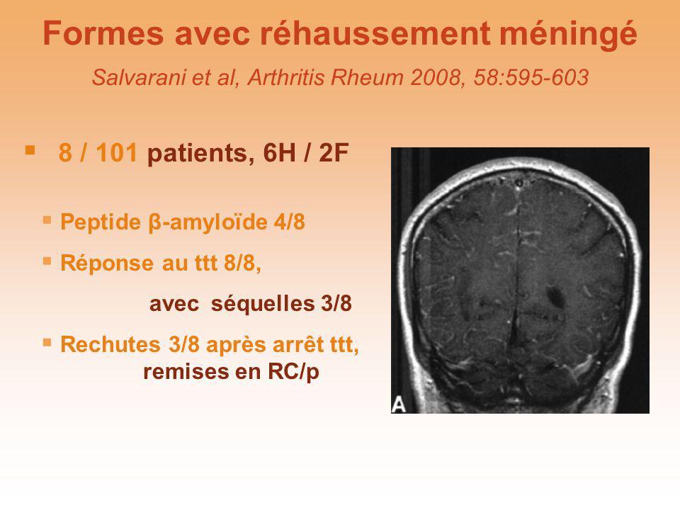 Formes avec réhaussement méningé Salvarani et al, Arthritis Rheum 2008, 58:595-603 8 / 101 patients, 6H / 2F Peptide β-amyloïde 4/8 Réponse au ttt 8/8