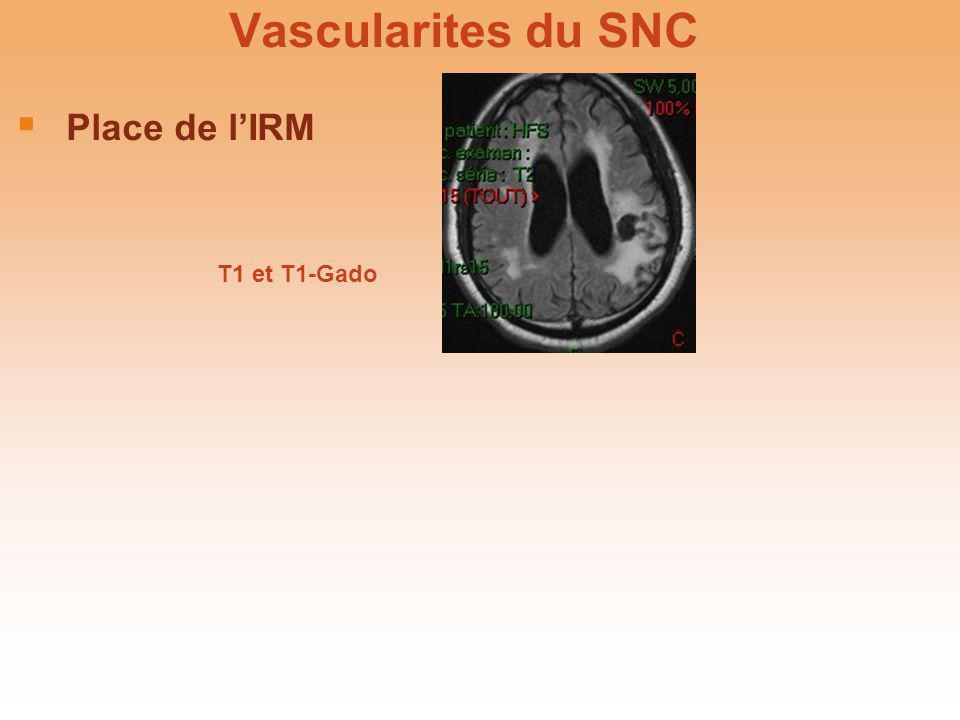 Vascularites du SNC Biopsie cérébro-méningée Sensibilité ~ 75-80 % (lésions segmentaires) Conventionnelle > stéréotaxique Prélèvement leptoméningé ++ Guidée par IRM / angiographie Hétérogénéité histologique Inflammation pariétale segmentaire des artères de petit/moyen calibres ± veines Granulomes/nécrose fibrinoïde ou non angéite granulomateuse du SNC Granulomateux / lymphocytaire / nécrotique Atteinte de la média ou non Biopsie cérébro-méningée Sensibilité ~ 75-80 % (lésions segmentaires) Conventionnelle > stéréotaxique Prélèvement leptoméningé ++ Guidée par IRM / angiographie Hétérogénéité histologique Inflammation pariétale segmentaire des artères de petit/moyen calibres ± veines Granulomes/nécrose fibrinoïde ou non angéite granulomateuse du SNC Granulomateux / lymphocytaire / nécrotique Atteinte de la média ou non