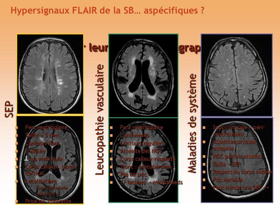 Hypersignaux FLAIR de la SB… aspécifiques ? Bien analyser leur taille et topographie SEP Leucopathie vasculaire Maladies de système Péri ventriculaire