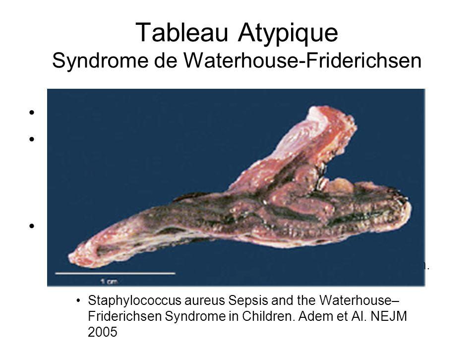 Tableau Atypique Syndrome de Waterhouse-Friderichsen Décrit en 1911 sur ménigoccémie Physiopathologie discutée Hypotension, inadéquation apports Confo