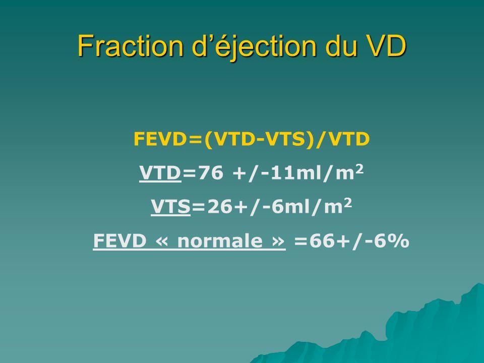 Fraction déjection du VD FEVD=(VTD-VTS)/VTD VTD=76 +/-11ml/m 2 VTS=26+/-6ml/m 2 FEVD « normale » =66+/-6%