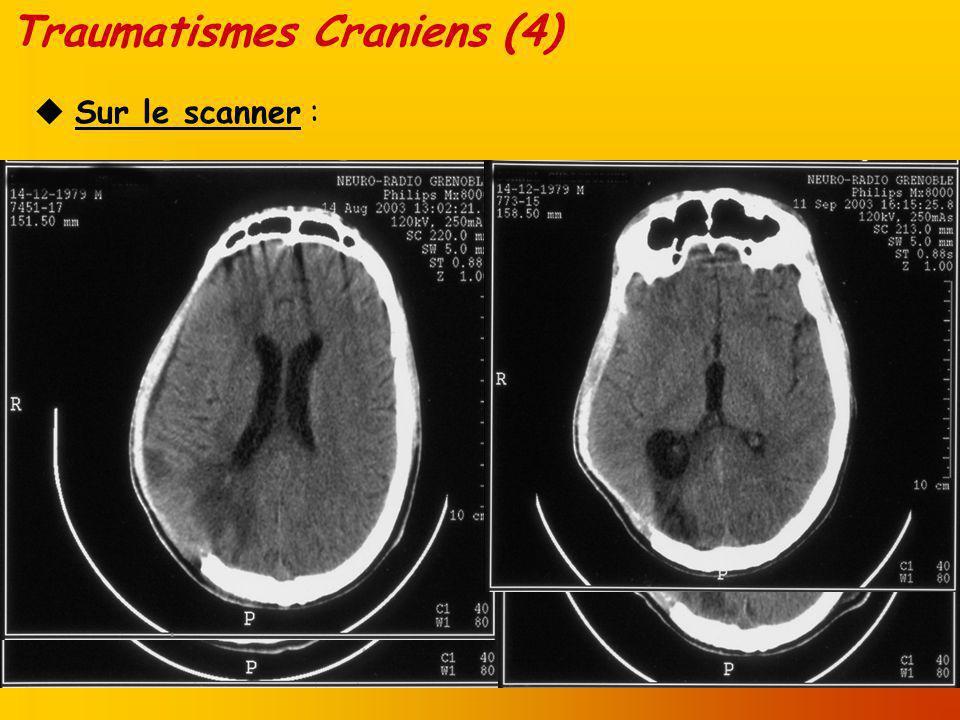 Traumatismes Craniens (5) A qui .