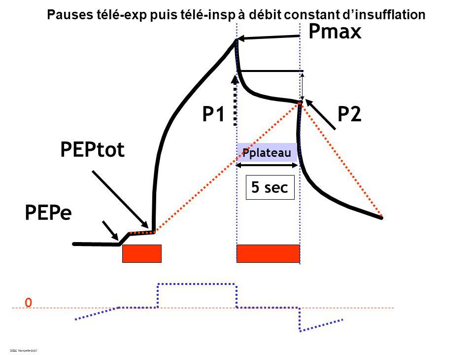 DESC Montpellier2005 PEPtot Pmax Pplateau PEPe P1 Pauses télé-exp puis télé-insp à débit constant dinsufflation 5 sec 0 P2