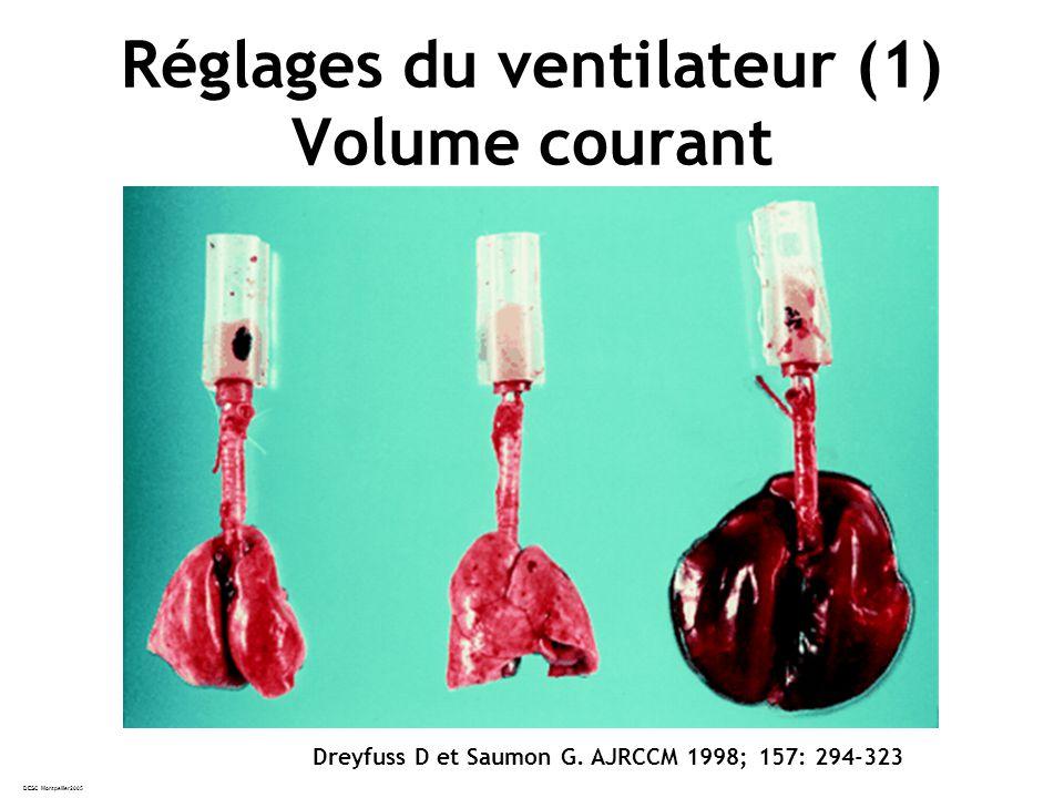 DESC Montpellier2005 Réglages du ventilateur (1) Volume courant Dreyfuss D et Saumon G.