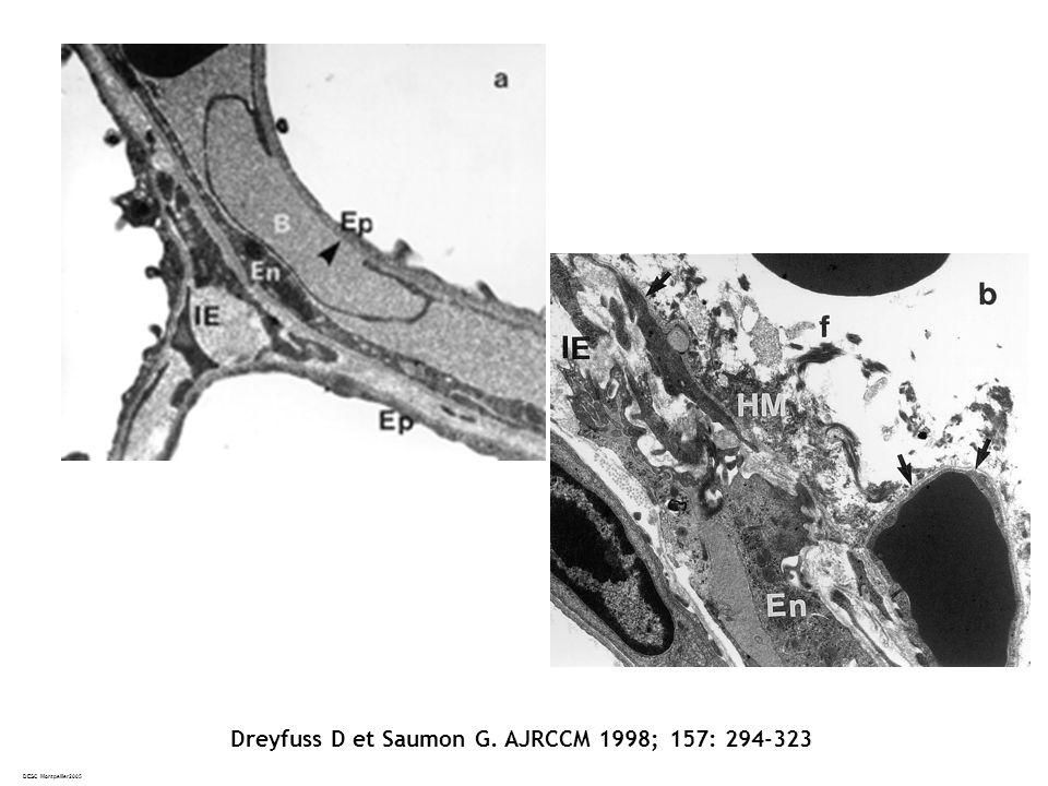 DESC Montpellier2005 Dreyfuss D et Saumon G. AJRCCM 1998; 157: 294-323
