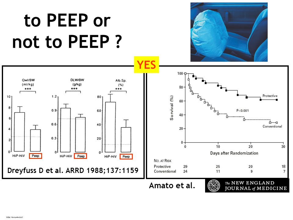 DESC Montpellier2005 to PEEP or not to PEEP ? Amato et al. Dreyfuss D et al. ARRD 1988;137:1159 YES