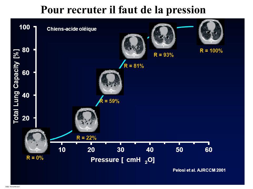DESC Montpellier2005 20 40 60 80 100 Pressure [cmH 2 O] 102030406050 Total Lung Capacity [%] R = 22% R = 81% R = 100% R = 93% 0 0 R = 0% R = 59% Pelosi et al.