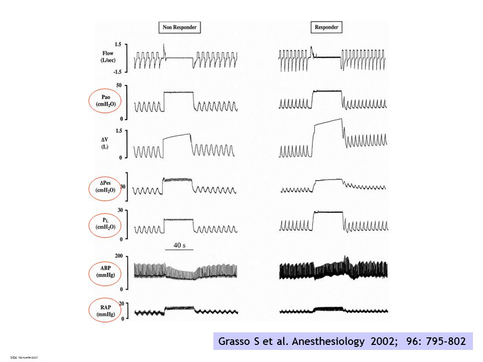 DESC Montpellier2005 Grasso S et al. Anesthesiology 2002; 96: 795-802