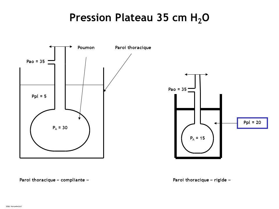 DESC Montpellier2005 Pression Plateau 35 cm H 2 O Pao = 35 Ppl = 5 P A = 30 Paroi thoracique « compliante » Paroi thoraciquePoumon Pao = 35 Ppl = 20 P A = 15 Paroi thoracique « rigide »