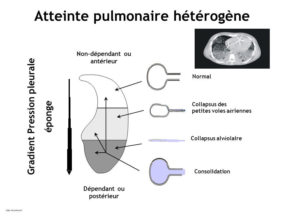 DESC Montpellier2005 Atteinte pulmonaire hétérogène Dépendant ou postérieur Normal Collapsus alv é olaire Collapsus des petites voies a é riennes Non-dépendant ou antérieur Gradient Pression pleurale éponge Consolidation