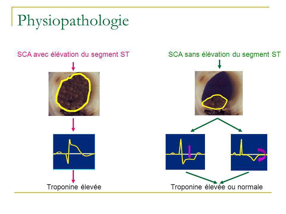 Physiopathologie SCA avec élévation du segment ST Troponine élevée SCA sans élévation du segment ST Troponine élevée ou normale