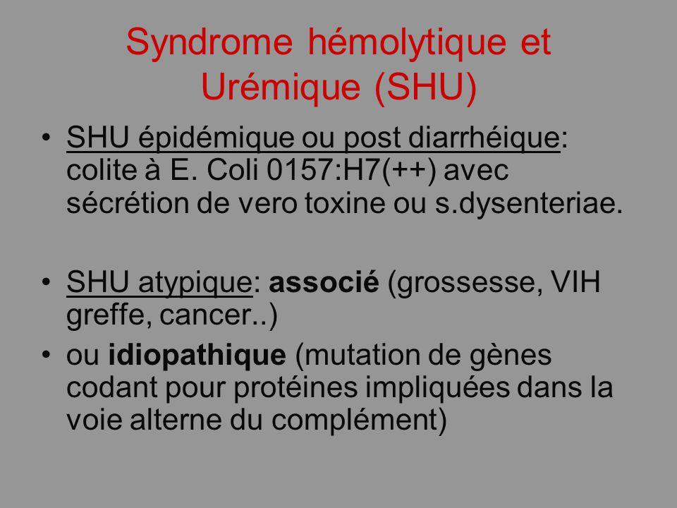 Syndrome hémolytique et Urémique (SHU) SHU épidémique ou post diarrhéique: colite à E. Coli 0157:H7(++) avec sécrétion de vero toxine ou s.dysenteriae