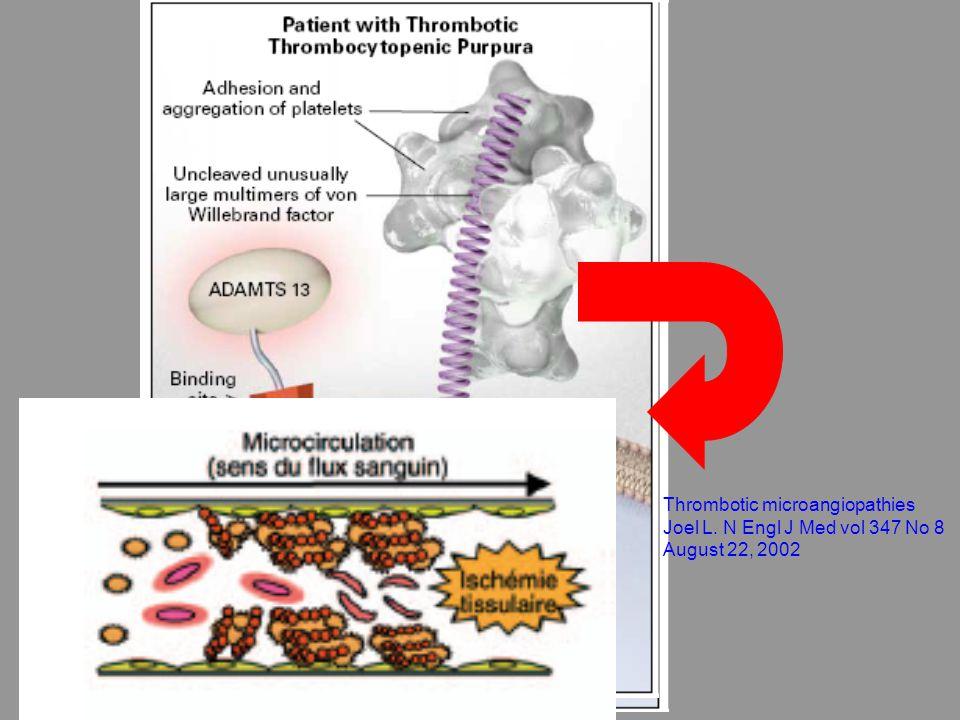 Autres syndromes de MAT Au cours de la grossesse : PTT ou SHU authentiques + HELLP HELLP : atteinte hépatique et CIVD Au cours du cancer Associé aux médicaments Greffe hématopoïétique Agression endoth disséminée (med, irradiation, infections….) VIH: PTT (parfois révélateur) ou MAT multifactorielle: médicamenteuse ou inf CMV Purpura thrombotique throbocytopenique et autres sydromes de microangiopathies Thrombotique, P Coppo, EMC Hématologie, 2005