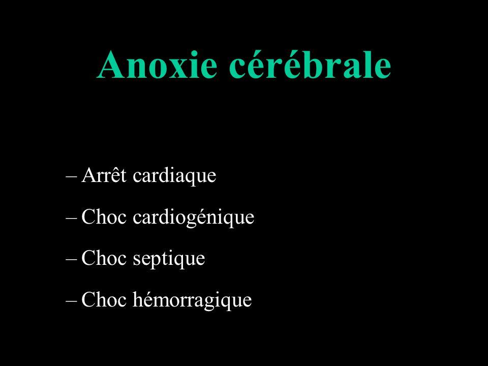 Anoxie cérébrale –Arrêt cardiaque –Choc cardiogénique –Choc septique –Choc hémorragique